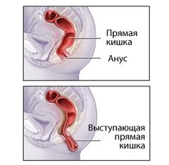 livmoder prolaps symptomer xvidios